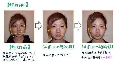 小顔施術例①.jpg